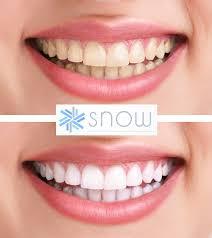Snow Teeth Whitening Kits Snow Teeth Whitening Reviews Coupon